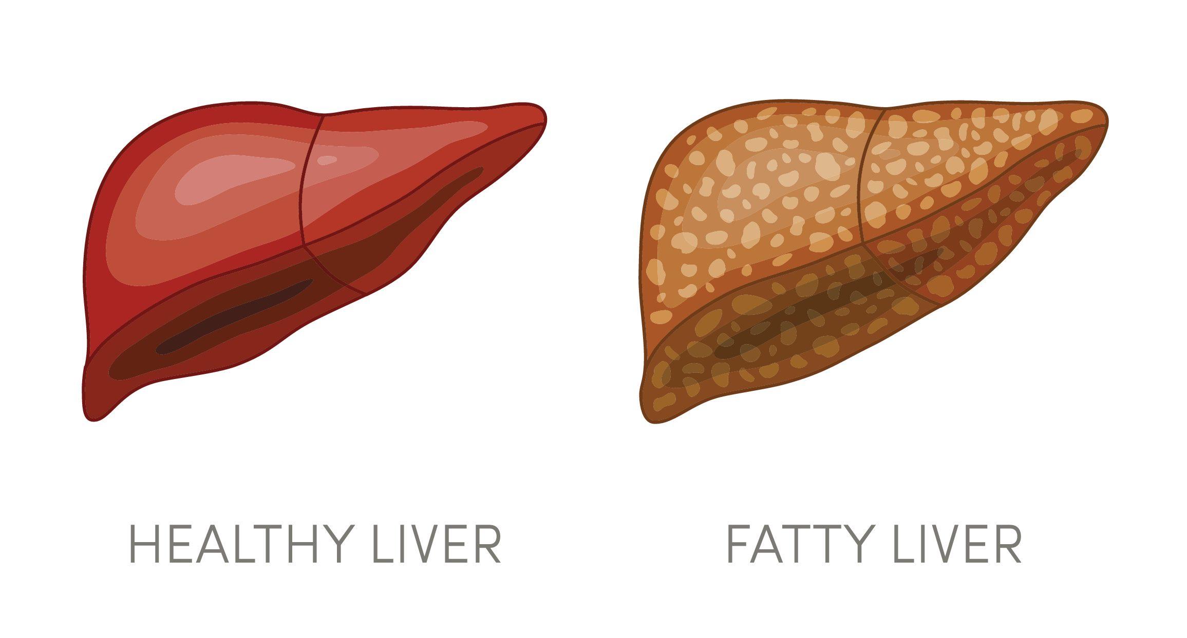 歯周病と脂肪肝と歯周統合医療との奇妙な関係