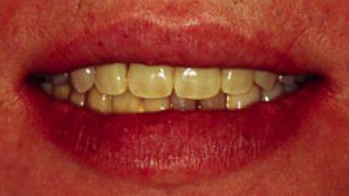 審美義歯は、全ての面でインプラントを超える入れ歯です!