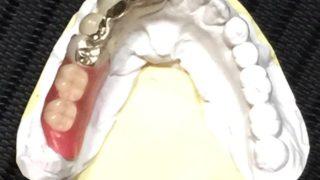 入れ歯で悩まないための3つのWhy!