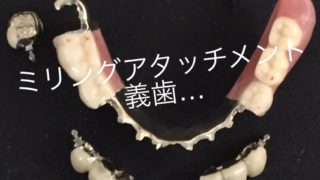 インプラントと同じくらい噛める入れ歯、ミリングアタッチメント義歯