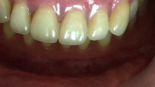 入れ歯安定剤を使わなくてもよい入れ歯はあるのですか? あります。それを吸着義歯と言います。