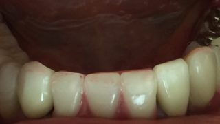 部分入れ歯は、こんなにも簡単に外れるものなのですか?